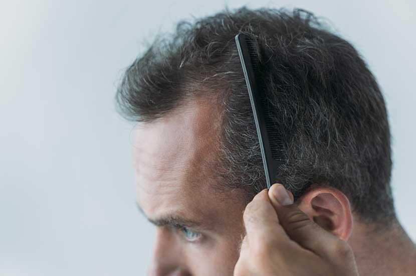 Vitahair Max może pomóc Ci mieć zdrowsze włosy