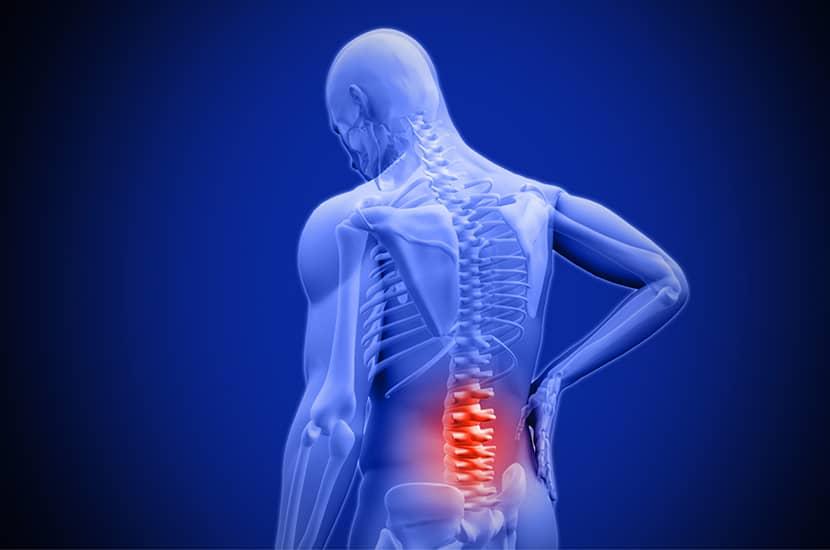 Najczęstszymi przyczynami bólu pleców są zwyrodnienia i stres