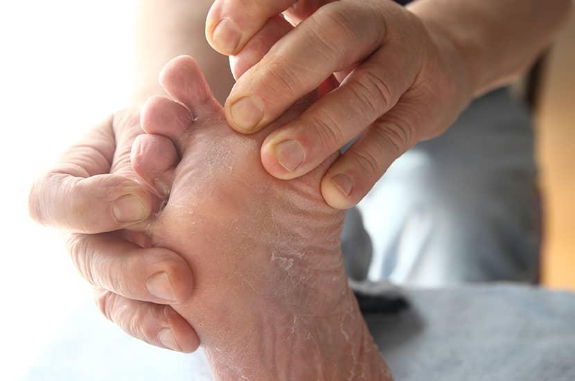 Stopa sportowca to stan spowodowany przez grzyby