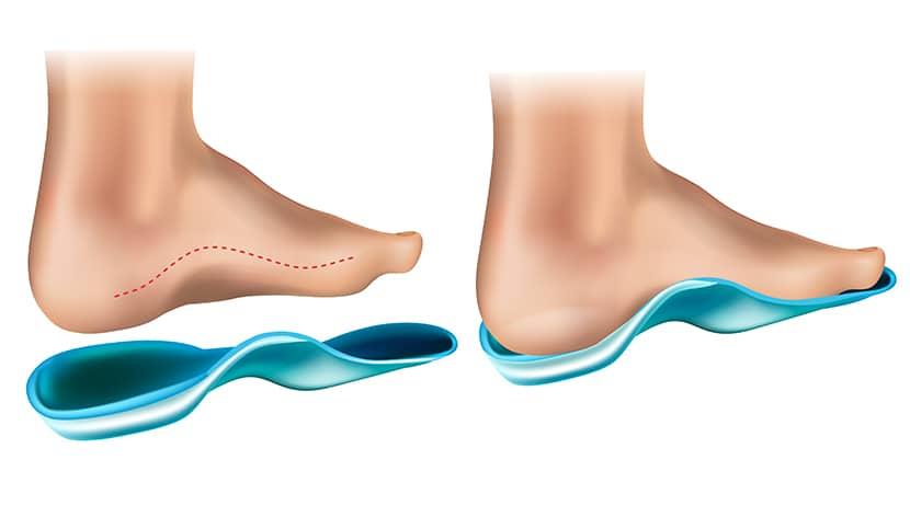 Wkładki Promagnetin można umieścić w każdym rodzaju obuwia